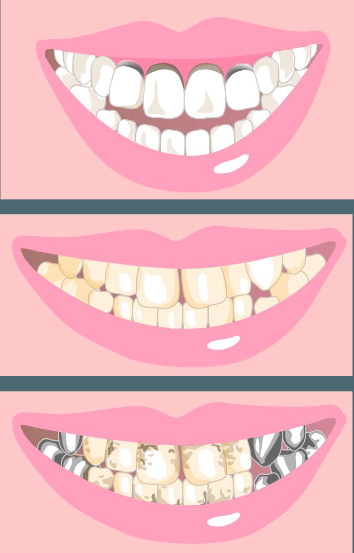 歯のグラデーション・形・大きさまで再現した審美治療