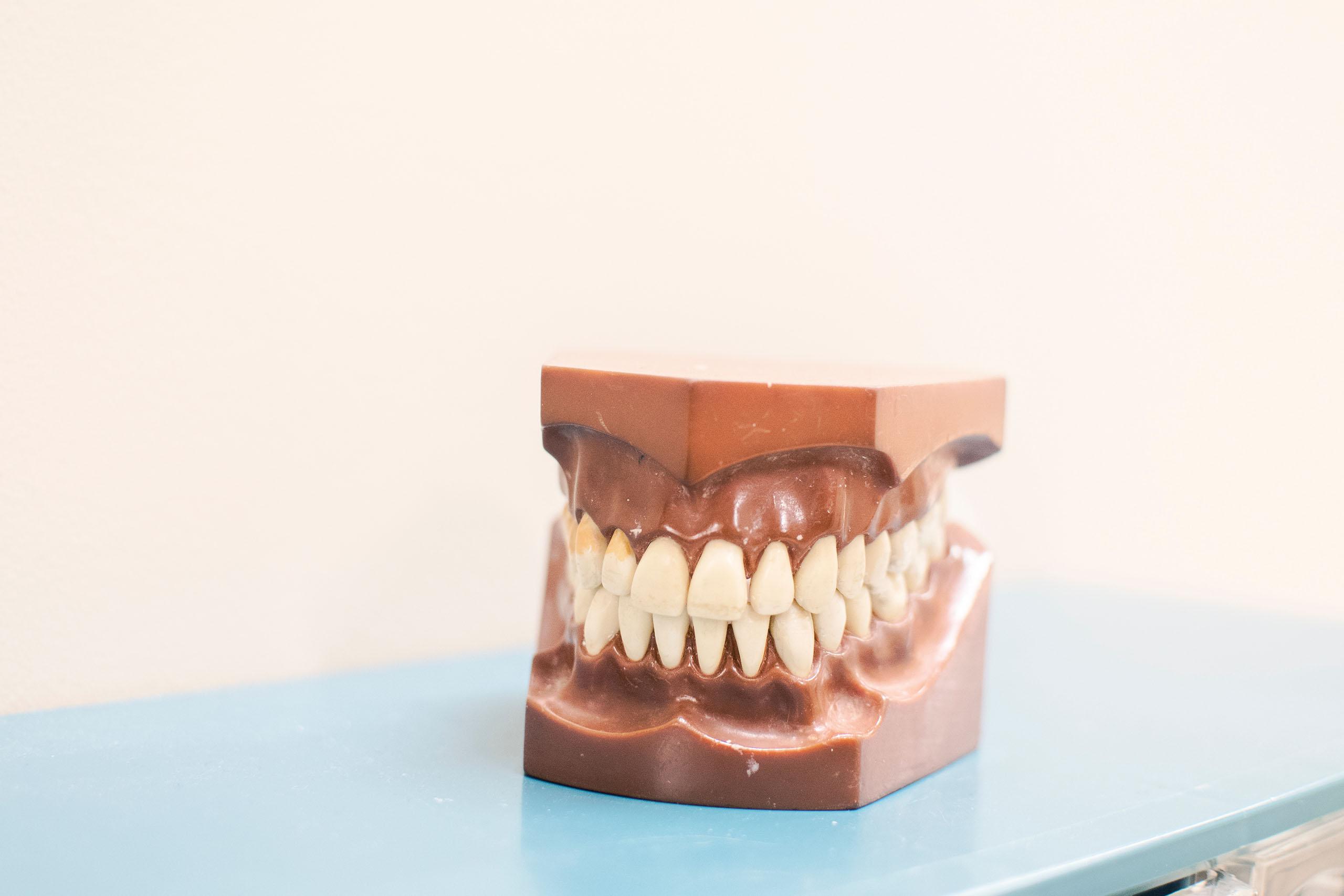 残っている歯に負担をかけない